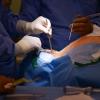 ONS-Elektroden werden inplantiert