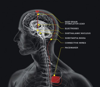 Tiefenhirnstimulation zur Behandlung von Clusterkopfschmerzen